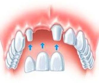 Implantes dentales: Servicios de Clínica Dental Casimiro Sinde Pereiro