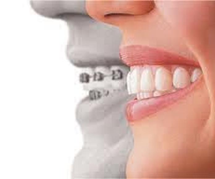 Tratamientos: Servicios de Clínica Dental Rident