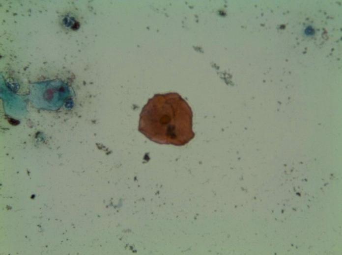 Célula superficial acidófila característica de la fase de estro