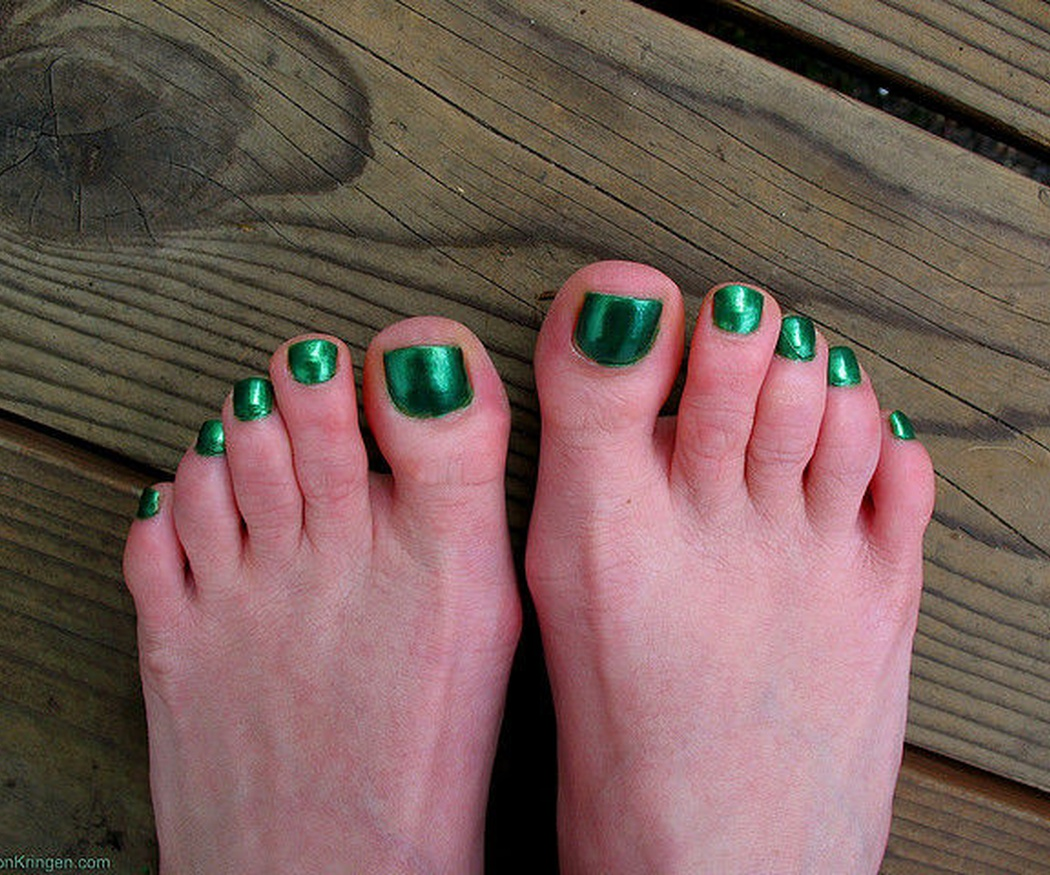 Consejos para prevenir las uñas encarnadas en tus pies