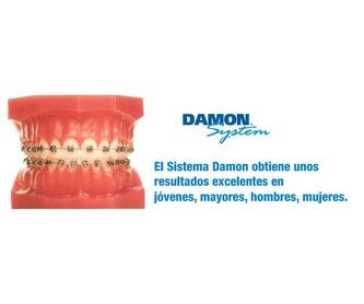 Niños : Especialidades  de Clínica de Ortodoncia Dr. Mariano Núñez