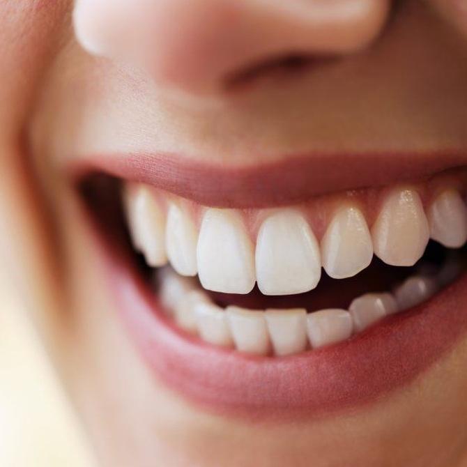 ¿Cuándo son aconsejables los implantes dentales?