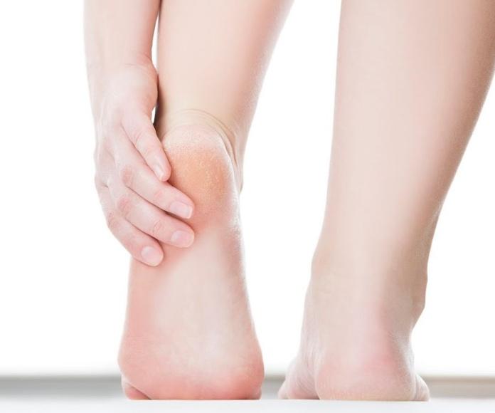 Tratamiento terapéutico de talones: Servicios de Ávila Nails