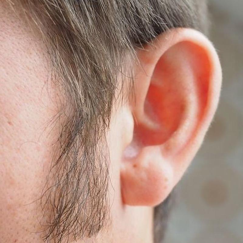 Plastia de orejas