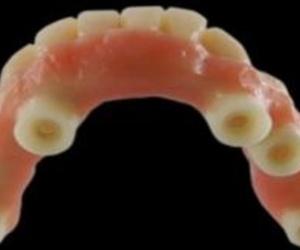 Todos los productos y servicios de Consulta de prótesis dentales: Dental Tucci
