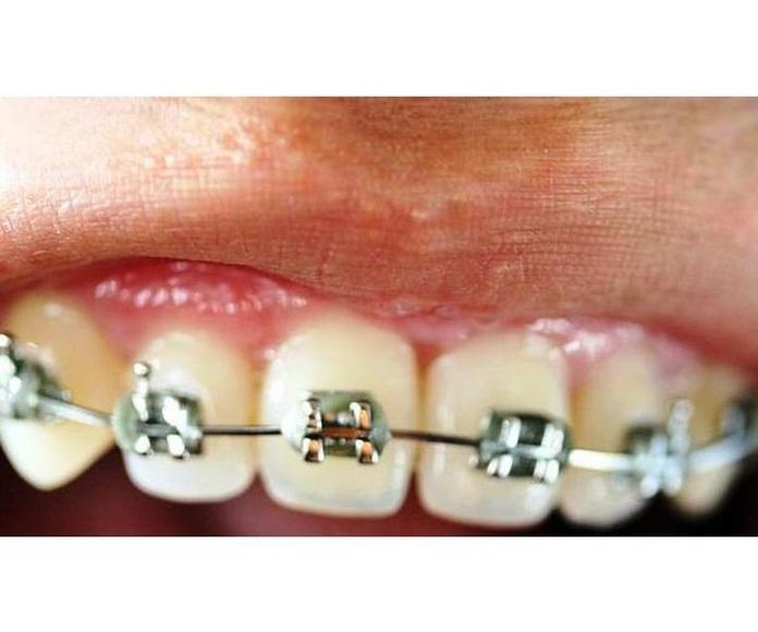 Ortodoncia: Especialidades  de Clínica Dental María Vijande