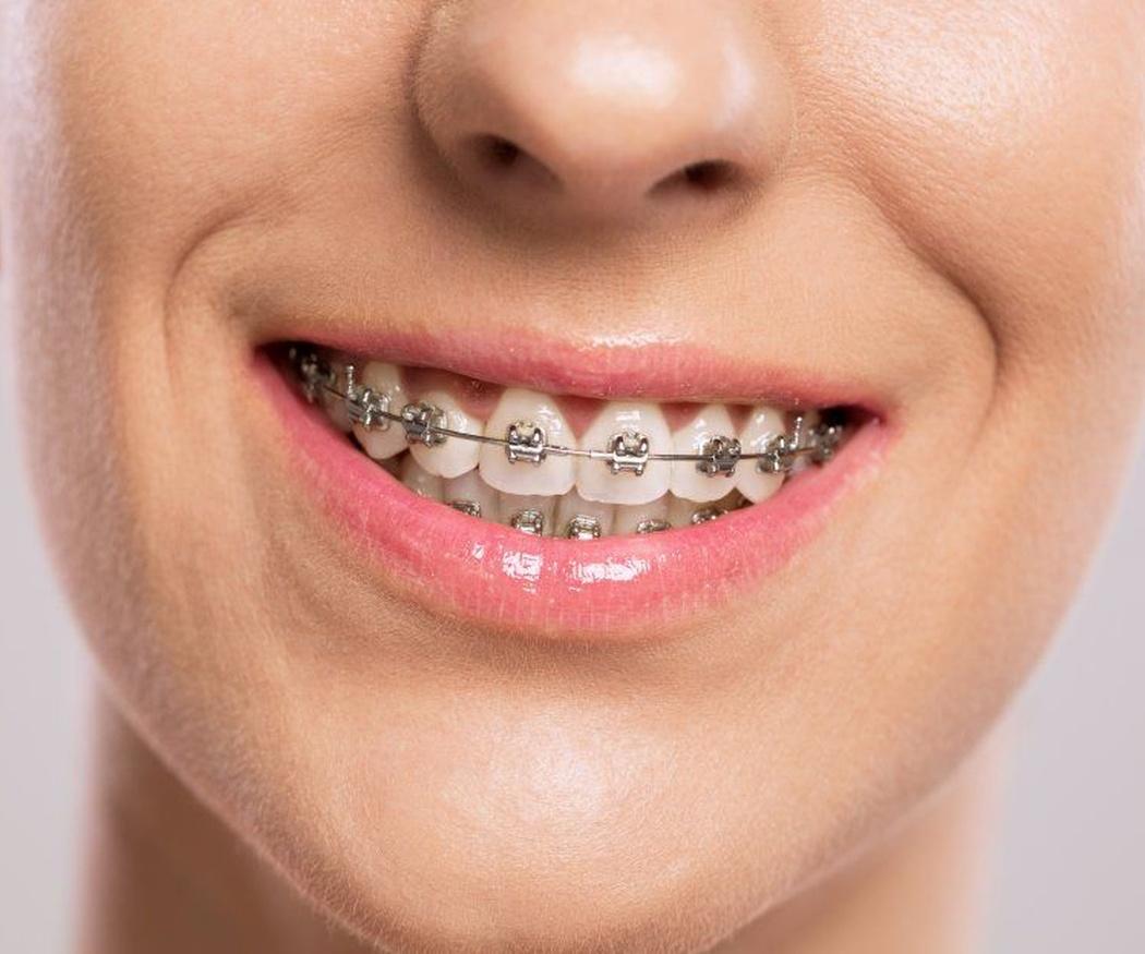 La ortodoncia y la digestión