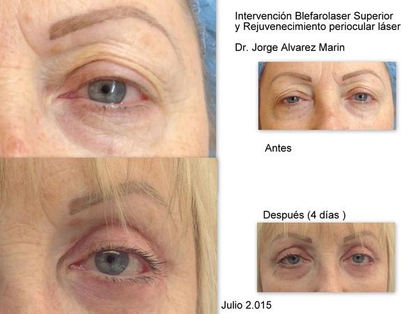 BLEFAROPLASTIA LASER Y REJUVENECIMIENTO PERIOCULAR paciente Dr.Alvarez