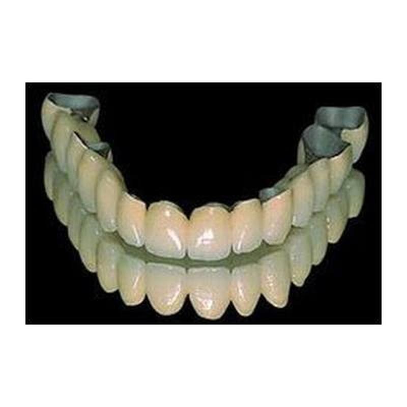 Metal Cerámica: Productos y Servicios de Renzo Laboratorio Dental