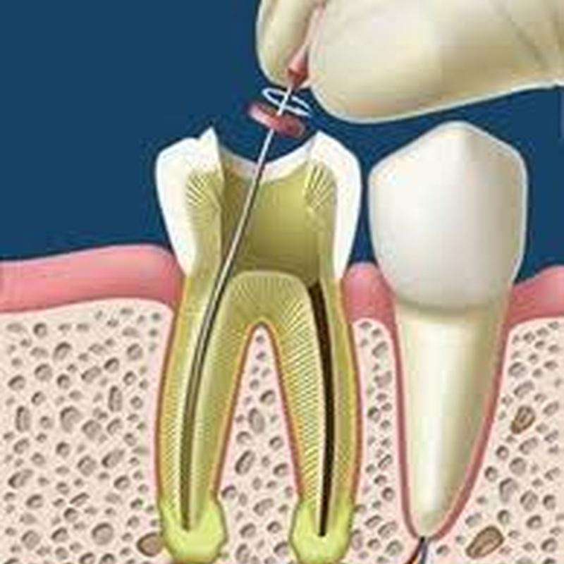 Endodoncia: Tratamientos de Dental Icaria, S.L.