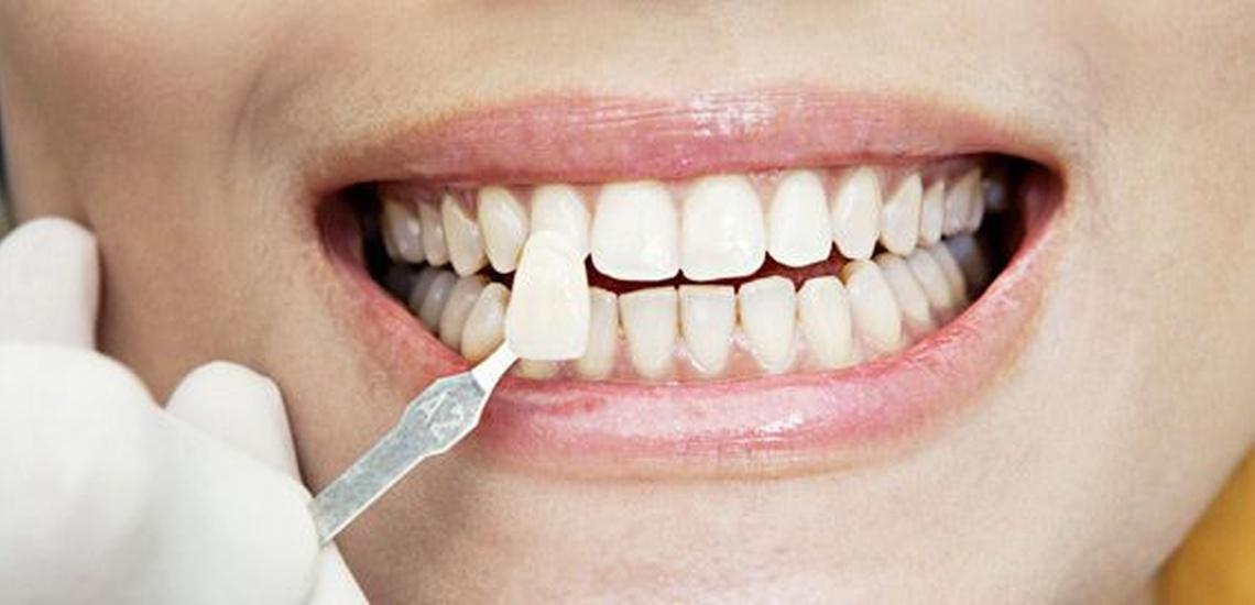 Presupuesto de clínica dental para tratamientos personalizados en Mallorca