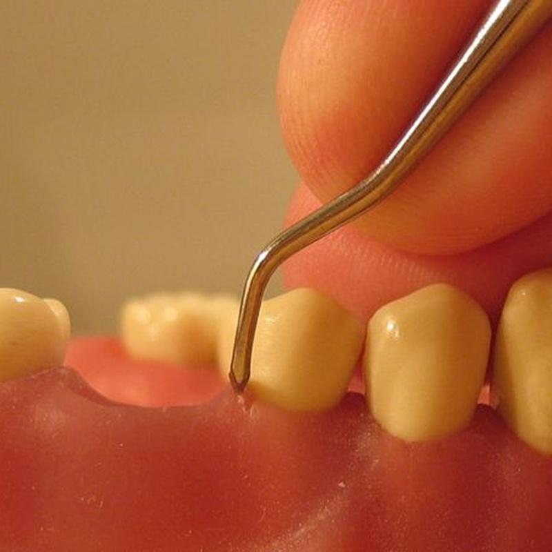 Periodoncia: Especialidades de Clínica Dental Virgen de la Victoria. Dr. Leopoldo Hernández