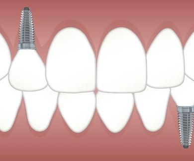 Promoción especial en implantes