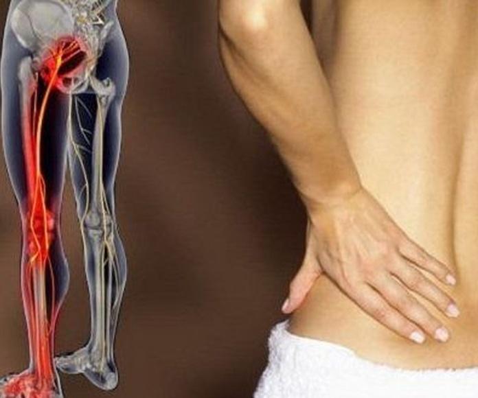 Ejercicios para aliviar el dolor del nervio ciático