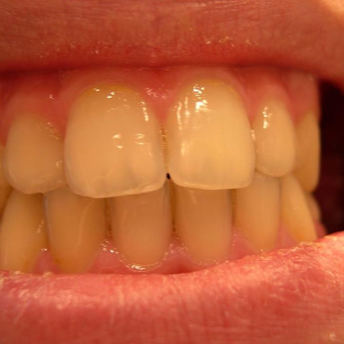 La higiene dental: vigilancia permanente