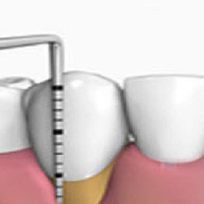 PERIODONCIA: Tratamientos de Clínica Dental Ángel Artiz