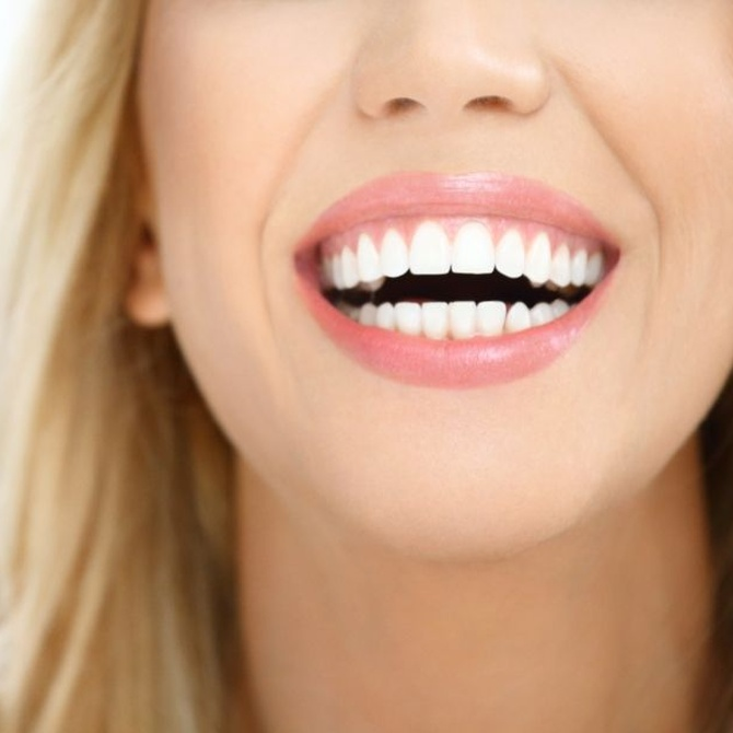 Una sonrisa perfecta es un elemento clave para tu imagen