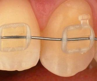 Odontología : Especialidades de Insadent - Centro Odontológico