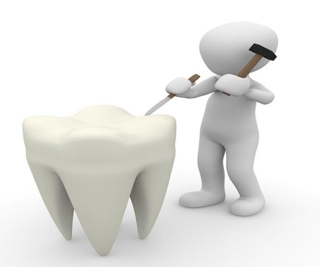 Los cuidados tras una endodoncia