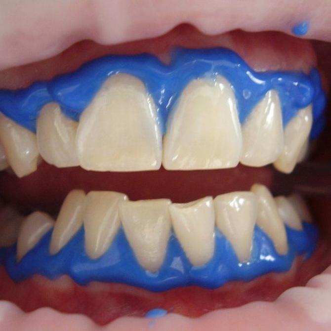 Comer tras un blanqueamiento dental