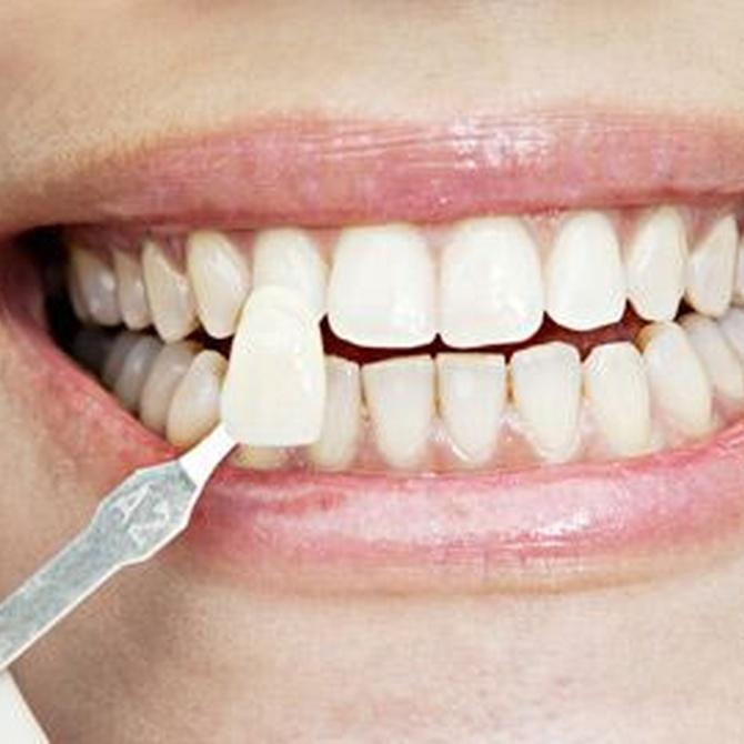 ¿En qué se diferencian las fundas de las carillas dentales?