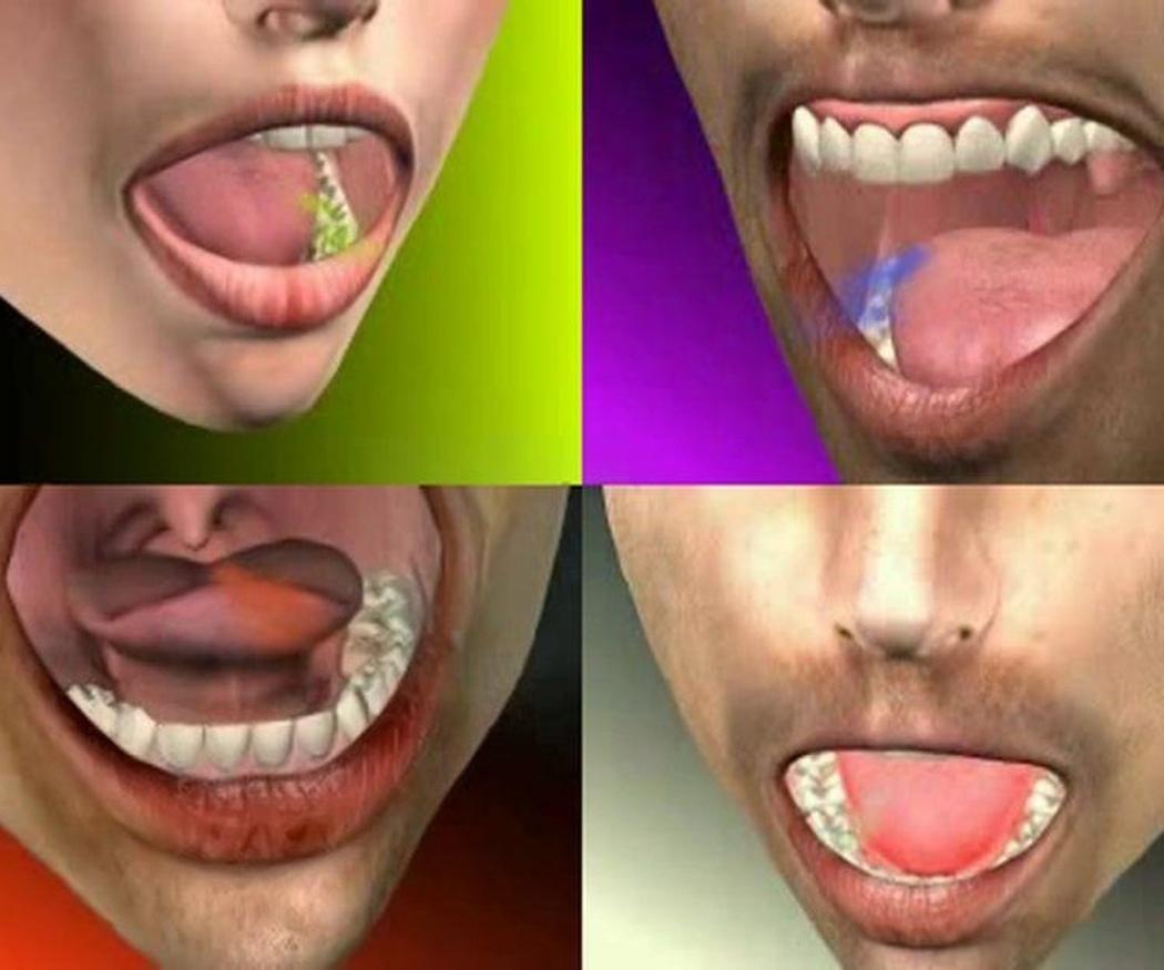 Las causas de la halitosis (I)