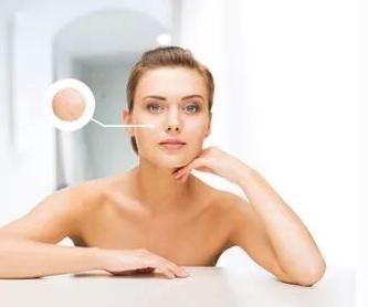 Caída del cabello: Tratamientos de Medicina Estética Profesional