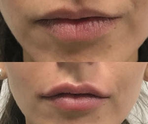 Voluminización e hidratación de labios