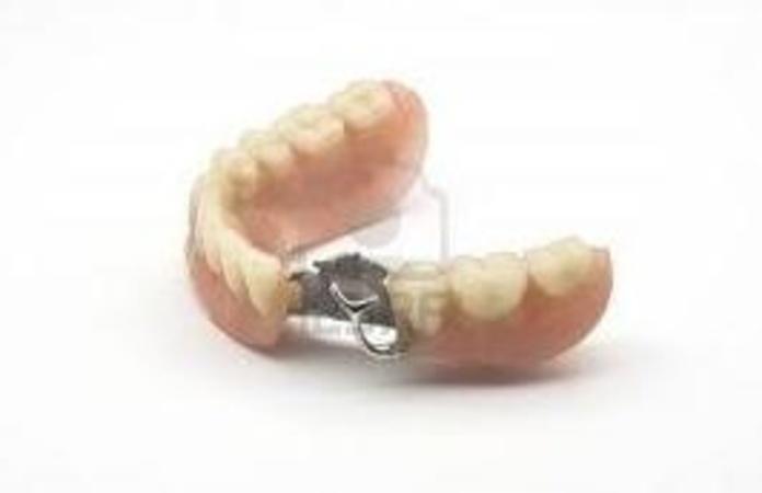Prótesis removibles: Catálogo de Clínica Dental Dra. Miriam Signorini
