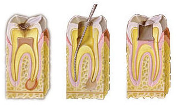 Endodoncia: Tratamientos de Centro Estética Dental García Marí