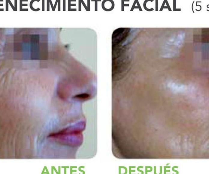 Rejuvenecimiento facial Indiba: Servicios de Bethsabee Belleza Avanzada