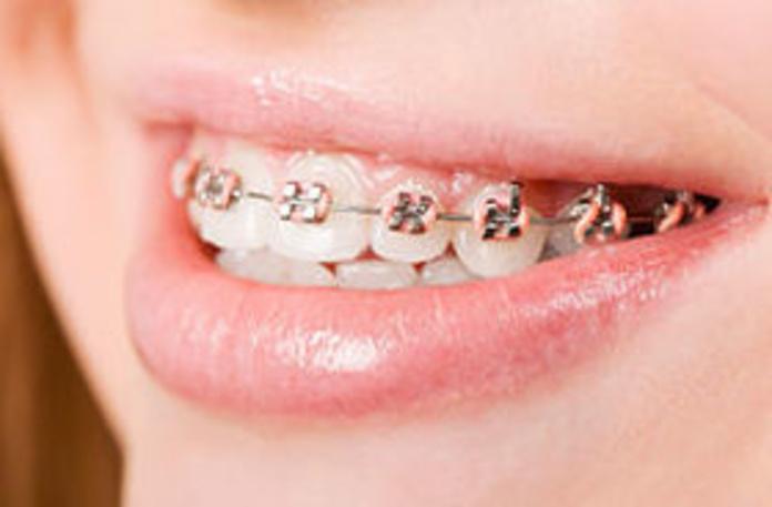 Ortodoncia: Servicios que ofrecemos de Clínica Dental Dr. Delgado y Dra. Díaz