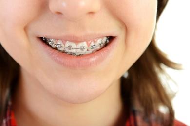 Brackets, la reinvención de la ortodoncia