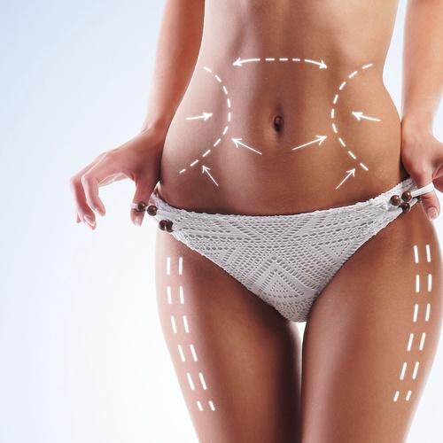Clínica de liposucción en Cáceres