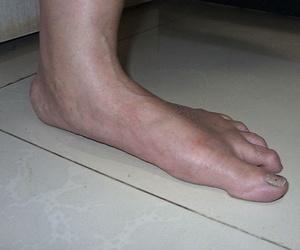 Solucionamos los problemas de tus pies