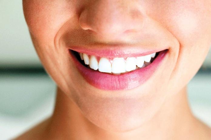 dentista en cadiz implantes