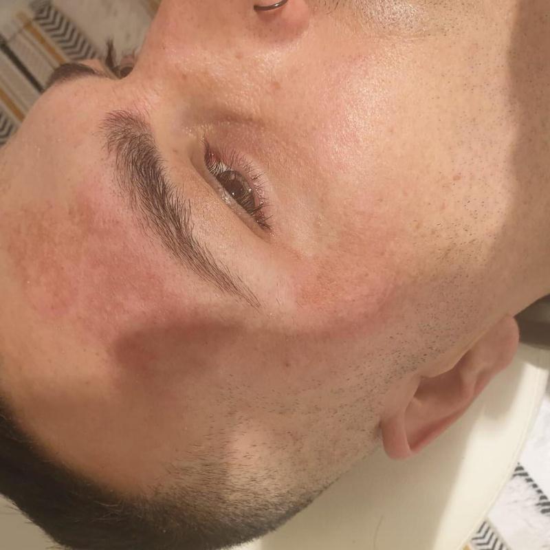 Tratamientos faciales: Servicios de Zafire Estética