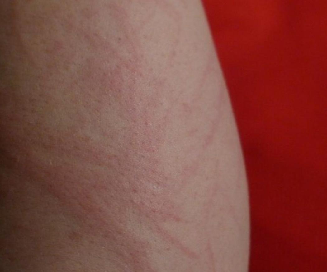 Las alergias alimentarias más comunes