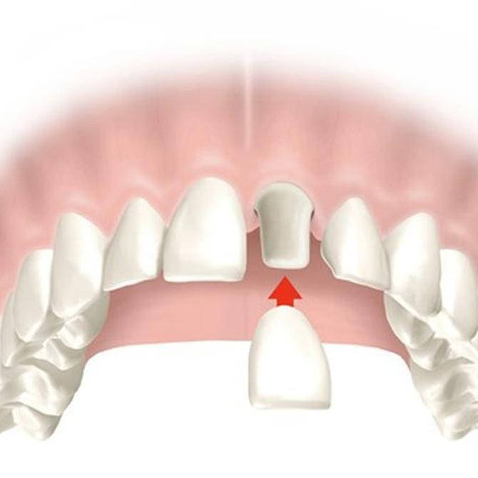 La mitad de los españoles ha perdido algún diente antes de los 40