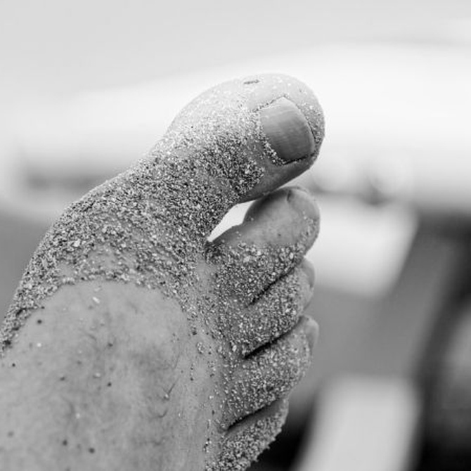 Cómo podemos prevenir la gota o tratarla si ya la padecemos