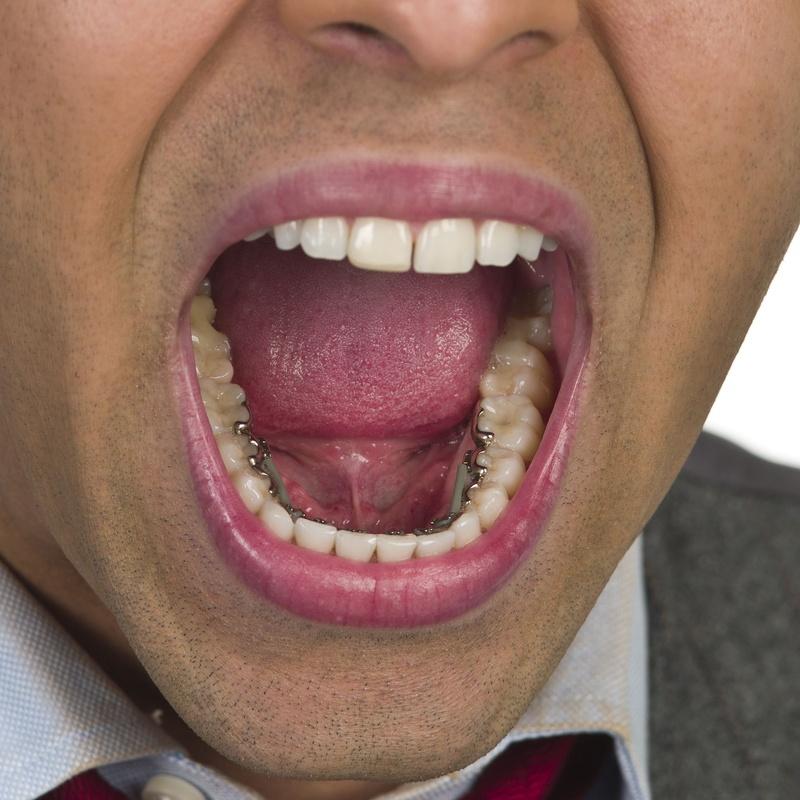 Ortodoncia lingual: Tratamientos de Centro Médico Dental Capitol