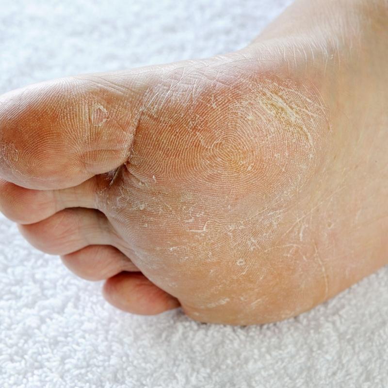 Pie de Atleta o tiña pedis: Dermatología y Dermoestética de Dermatología Socorro Fierro