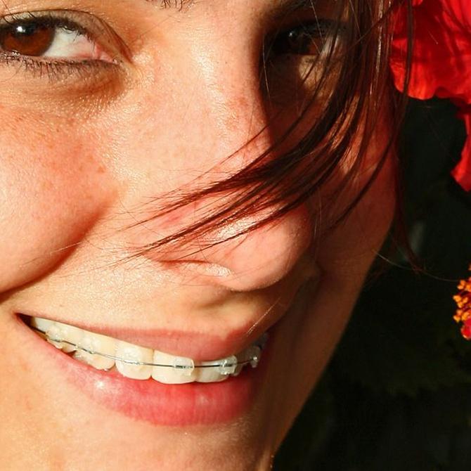 La ortodoncia en los adultos