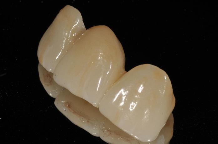 clínica dental en chamartín. Puente emax