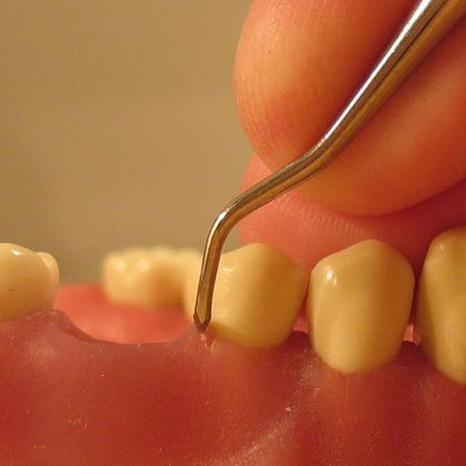 ¿Cómo tratar una periodontitis?