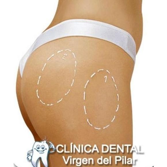 Liposucción: Tratamientos de Clínica Dental Virgen del Pilar