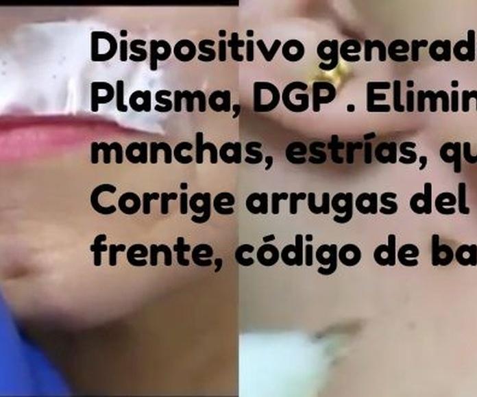 Dispositivo Regenerador  de Plasma DGP: Tratamientos de Vida con Estética