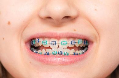 Ortodoncia niños hortaleza