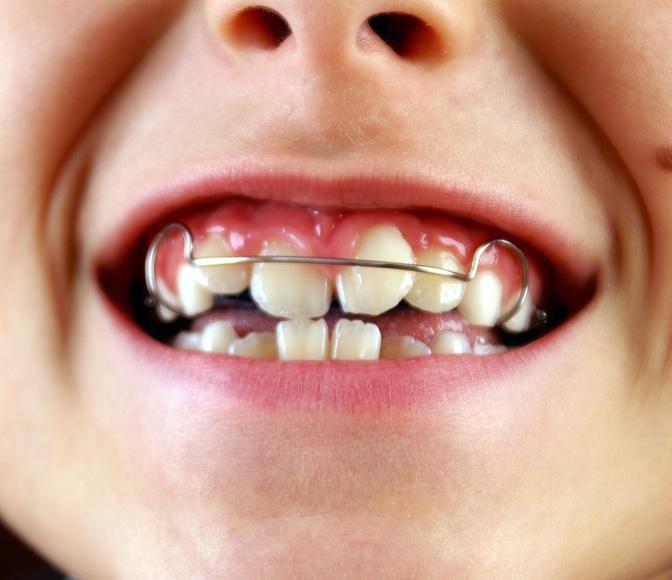 Ortodoncia infantil removible