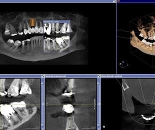 Radiología DIGITAL 3D